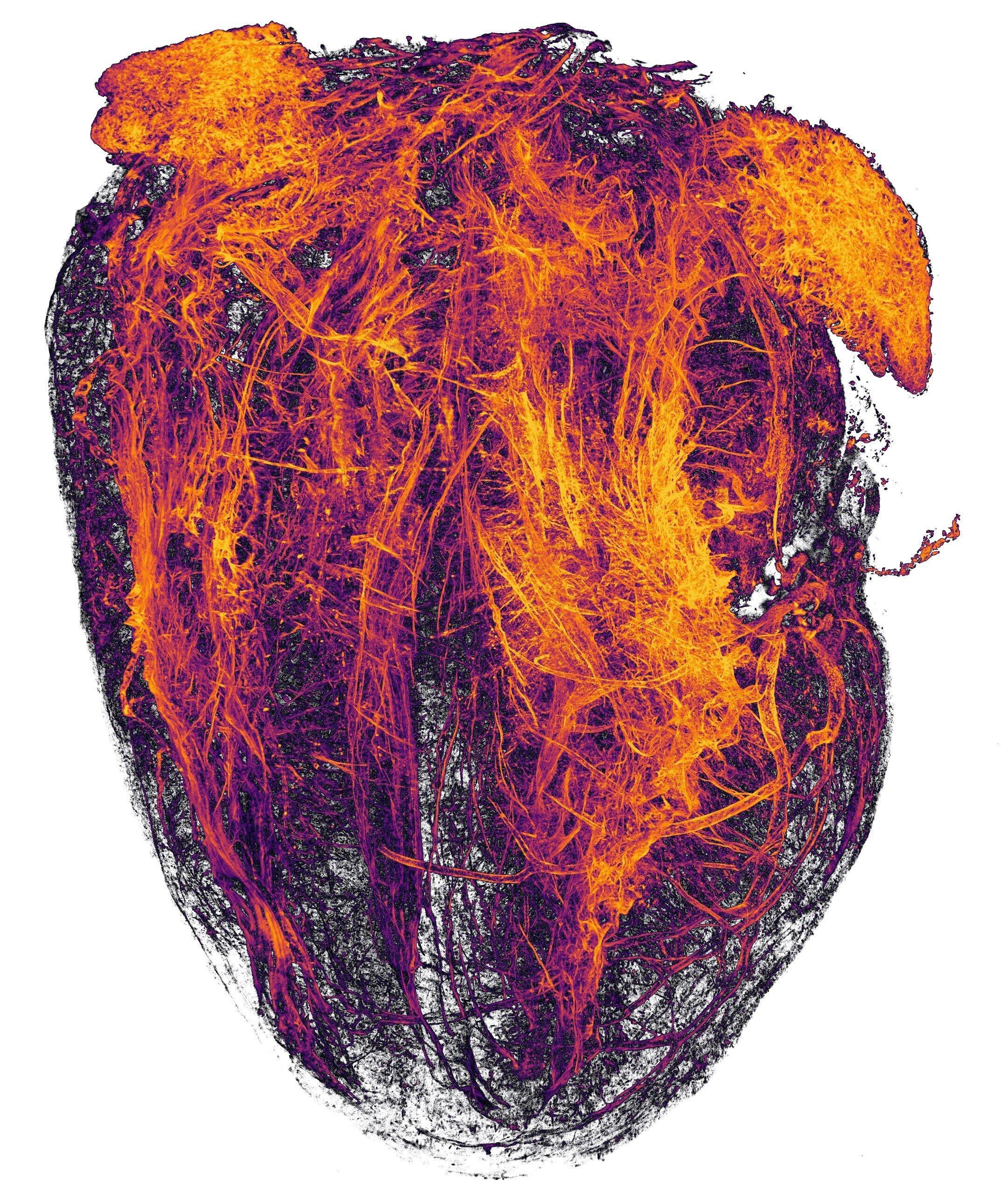 20-Heart-MIP