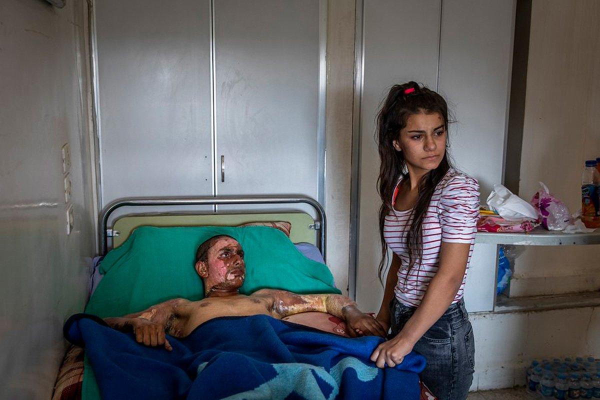 Ivor Prickett – Irlanda – Canon EOS 5D Mark IV – Injured Kurdish Fighter Receives Hospital Visit