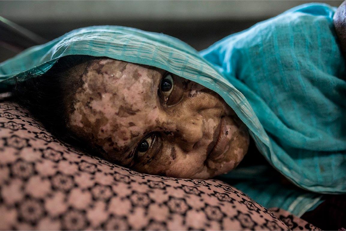 Rohingyas_escapandodelgenocidio_2000x
