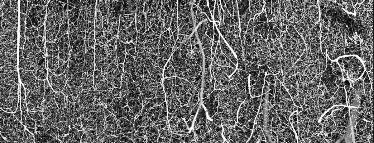 6-BrainVasculature